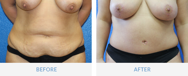 tummy tuck fort myers florida