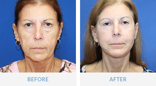 facelift before and after ft myers fl